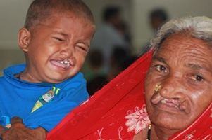 Child and grandma with cleft lip deformity